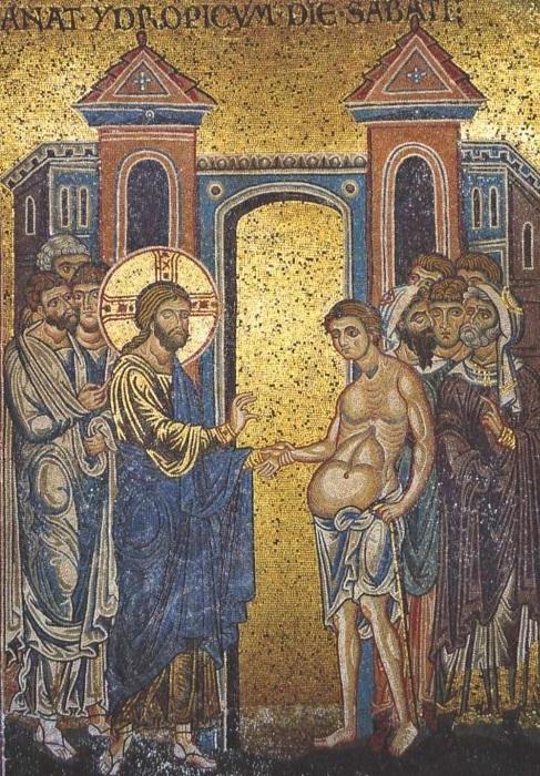 guérison de l'hydropique - mosaïque Santa Maria Nuova Monreale